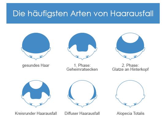 Formen von Haarausfall bei Männern