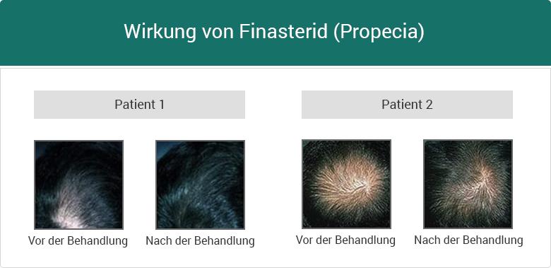 Erfolge von Finasterid Propecia