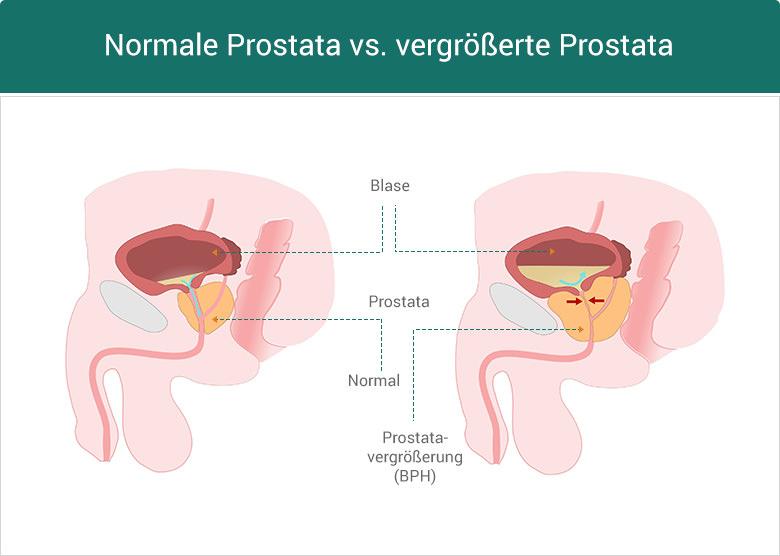 BPH = (gutartige) Prostatavergrößerung